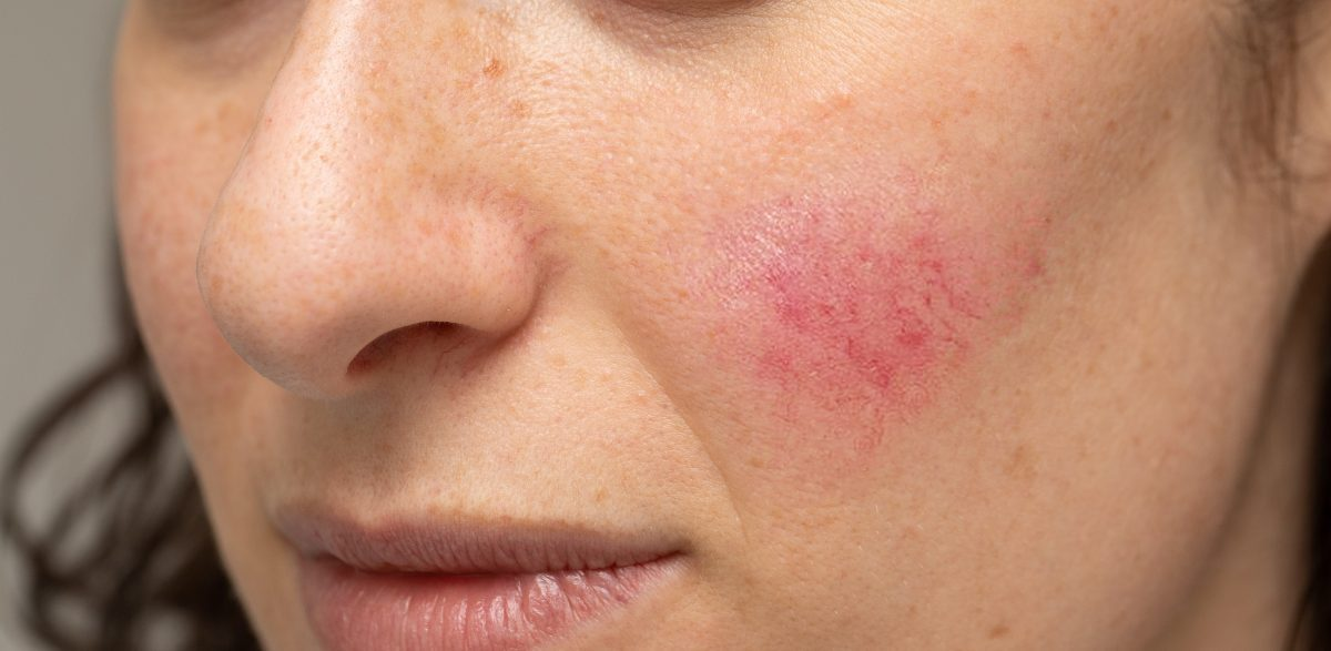 Rosacea Symptoms Causes And Treatment