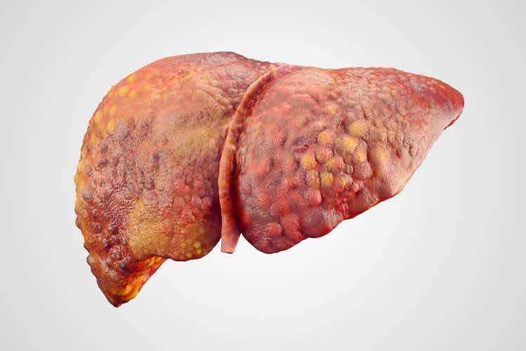 Image result for liver with cirrhosis