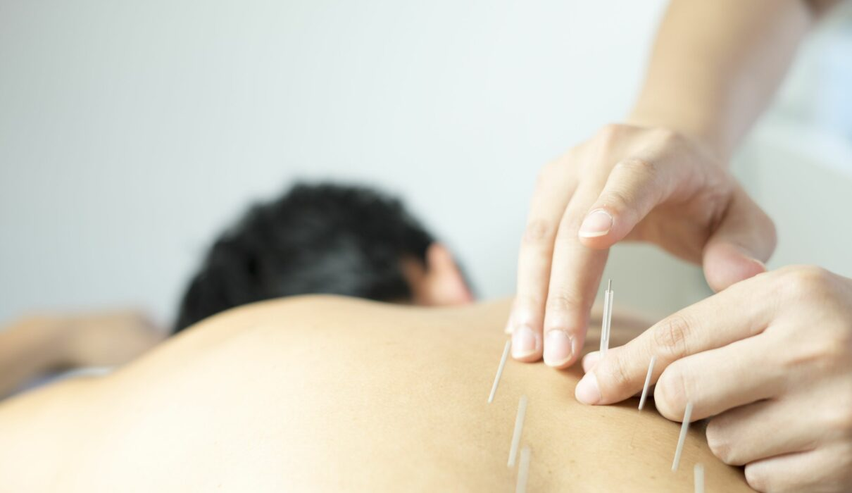 Acupuncture helps with hay fever symptoms