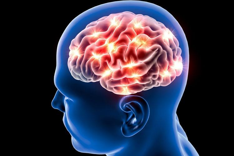 Stroke Signs Symptoms And Treatment Mydr Com Au