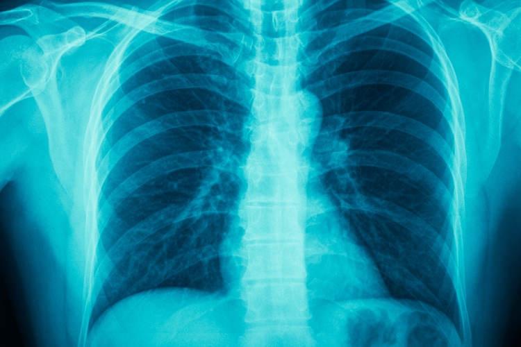 Bronchial asthma and cardiac asthma - myDr com au