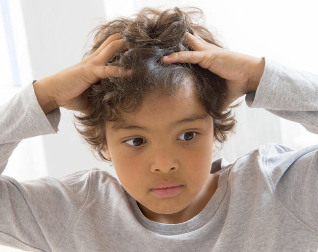 Head lice (Pediculus humanus capitis) are small wingless insects that live in your hair