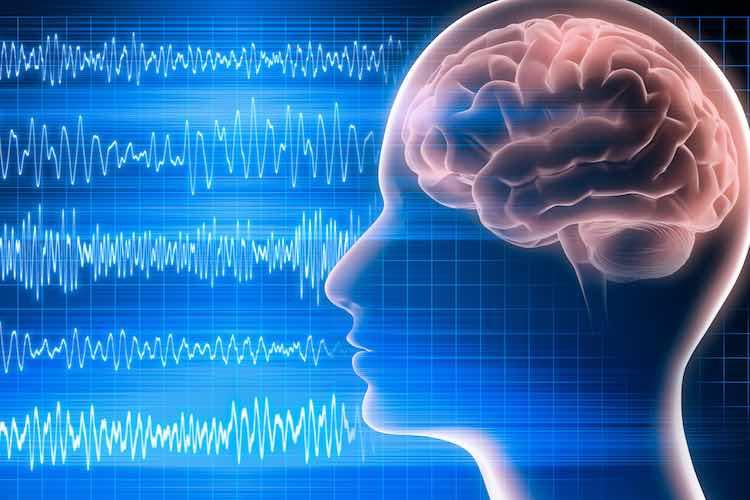 Electroencephalogram (EEG) - myDr com au