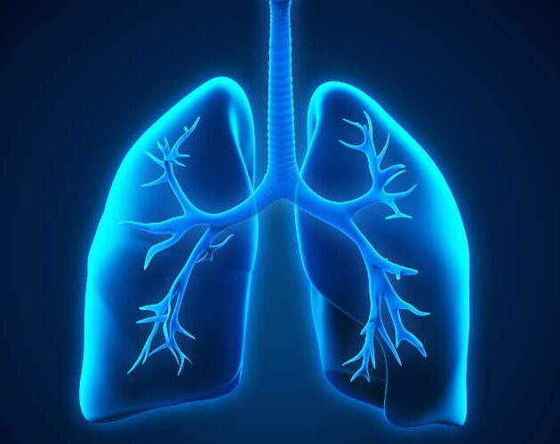 Emphysema is an ongoing lung disease