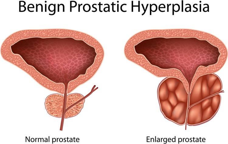 prostatic hyperplasia meaning)