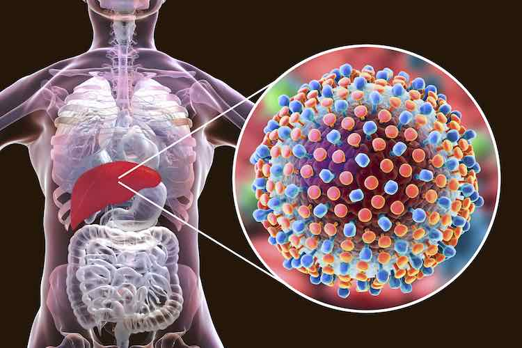 Hepatitis: an overview - myDr