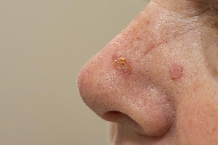 Skin Cancer Treatment Options Mydr Com Au