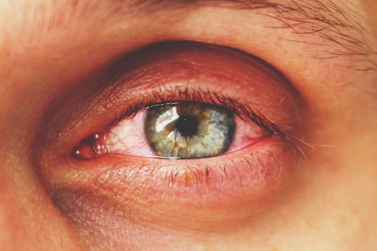 Thyroid Eye Disease Mydr Com Au