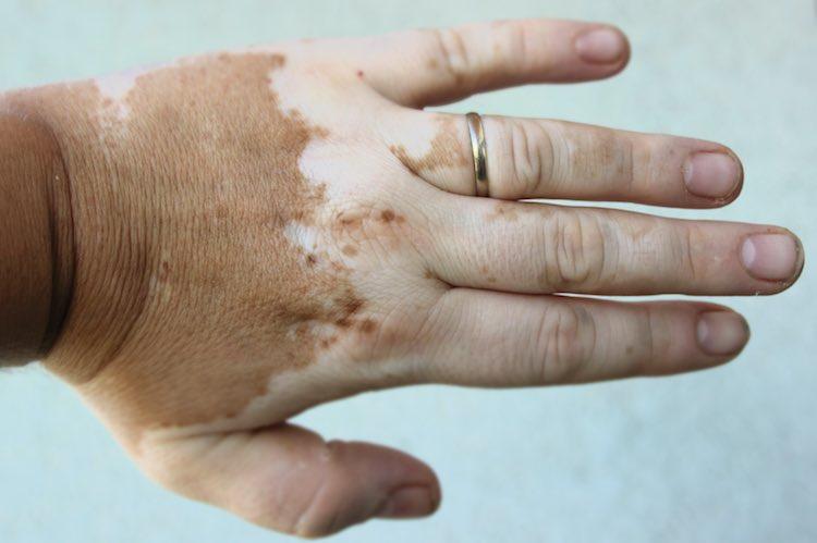 Vitiligo Mydr Com Au