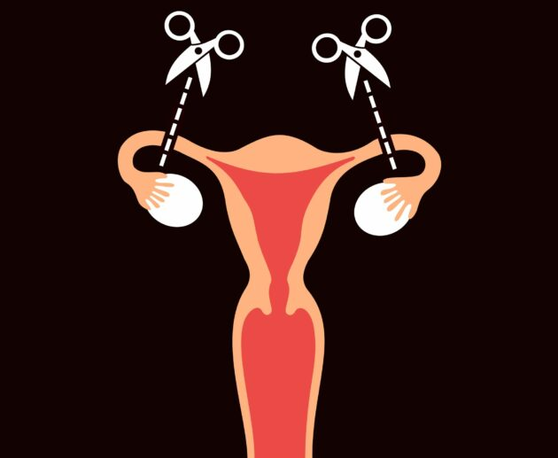Contraception: female surgical sterilisation