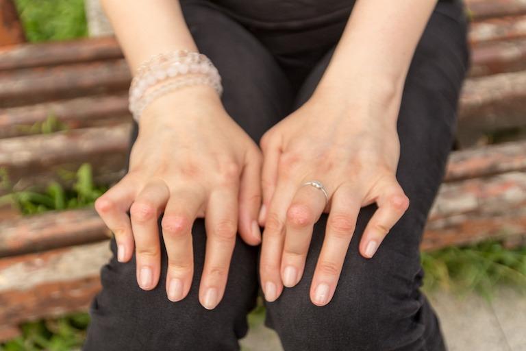 joint pain - rheumatoid arthritis