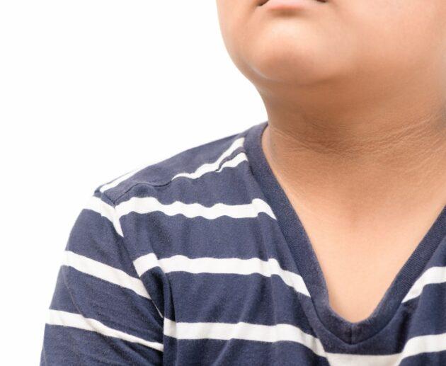 obesity - aboriginal health