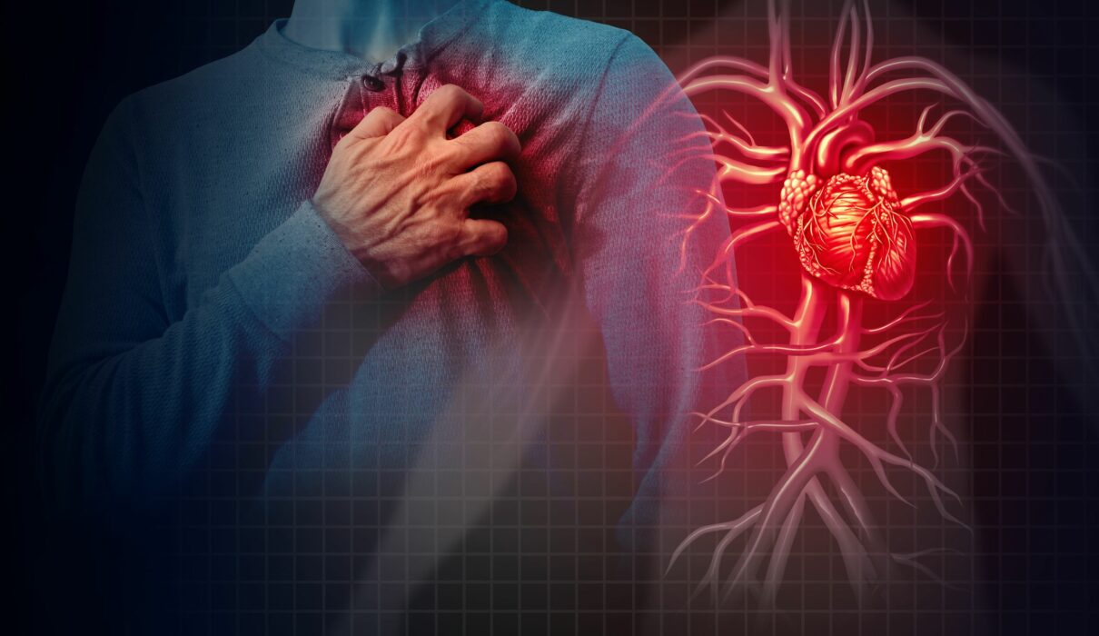 What are risk factor scores for heart attack?